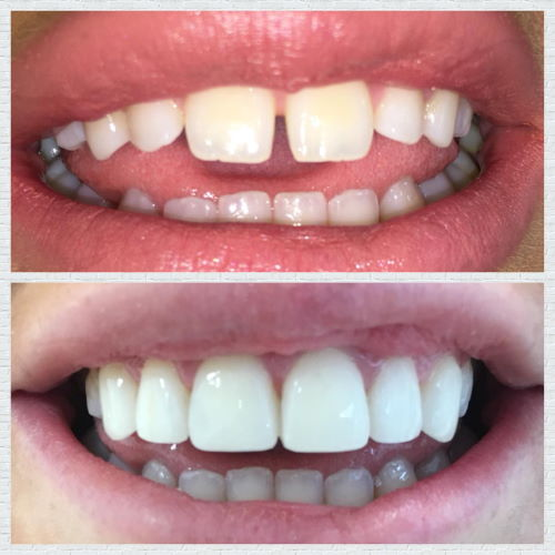 Smile Makeover in Manchester