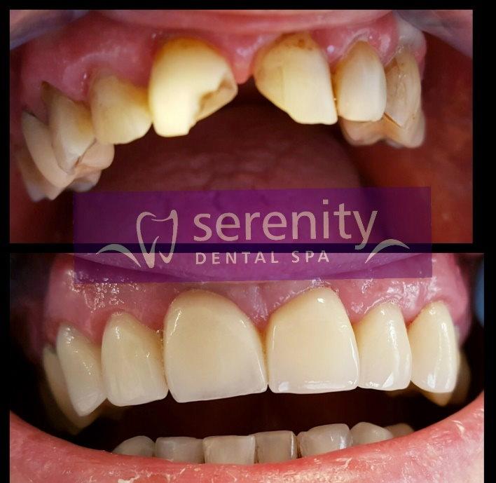 Teeth Veneers in Manchester