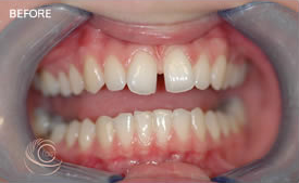 Teeth Straightening Manchester (before)